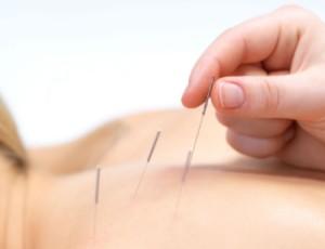 acupuntura-hg